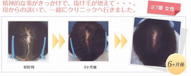 27歳女性の薄毛改善例