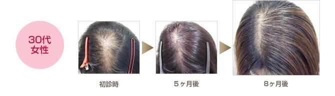 30代女性の薄毛改善例