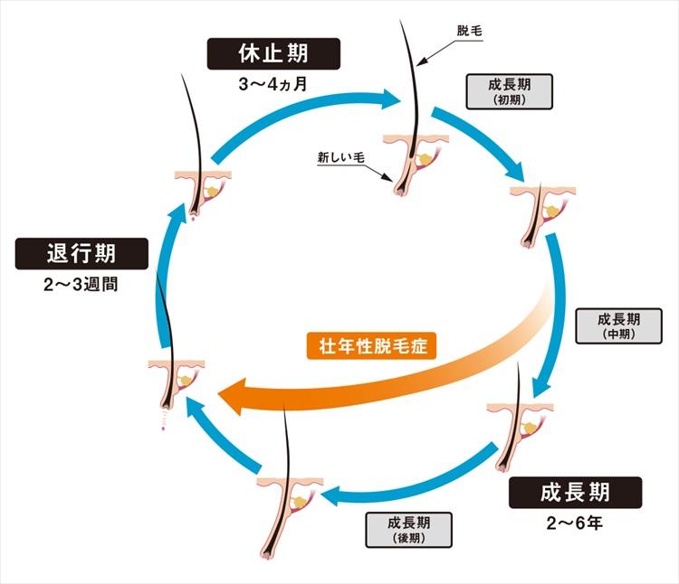 監修:東京女子医科大学 皮膚科 前教授・講座主任 川島 眞