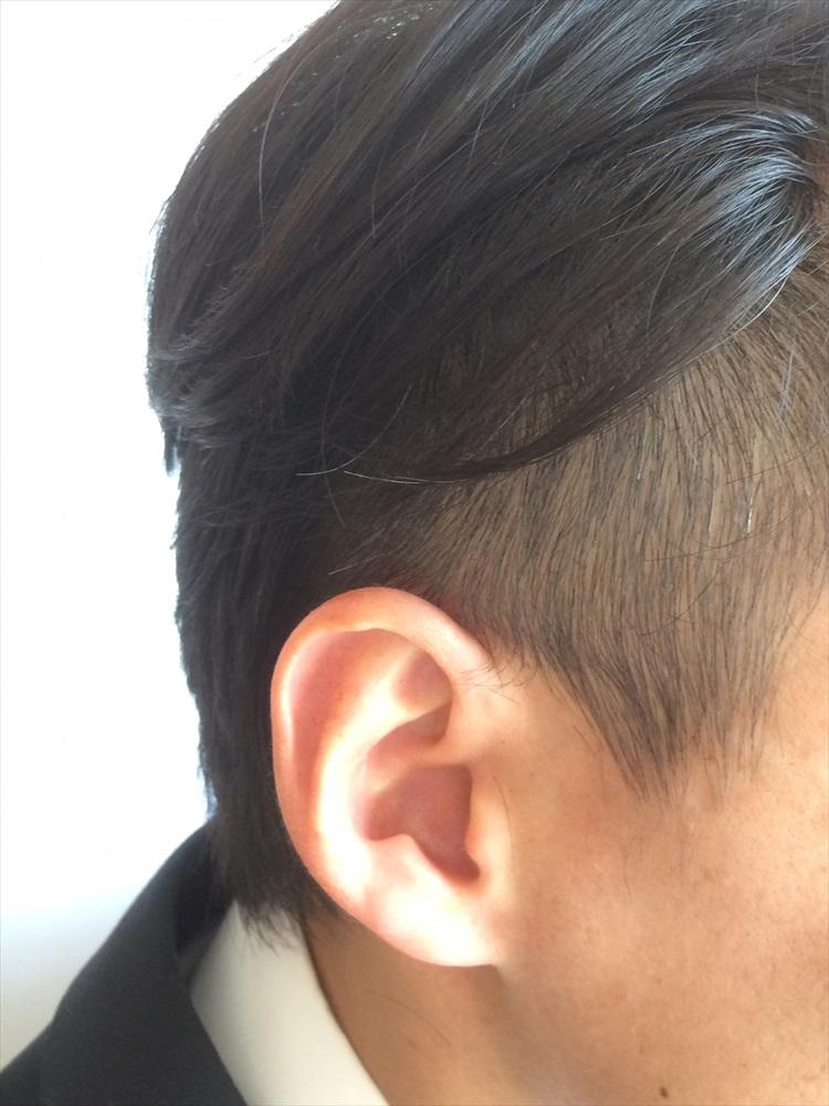 薄毛?前髪が薄く感じたら ー 前髪が薄い人のヘアカタログ・ヘアアレンジ方法