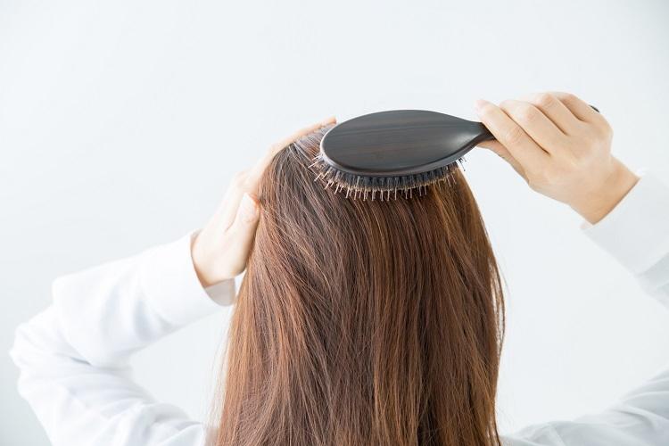 FAGA(女性男性型脱毛症)とは?原因と治療について